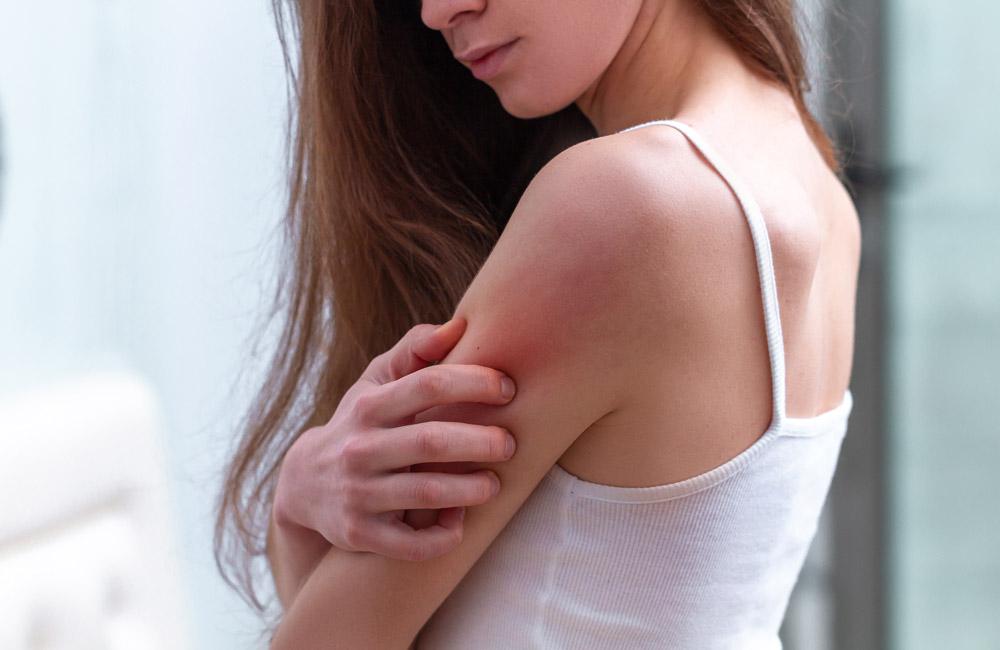 Cómo tratar la psoriasis sin corticoides
